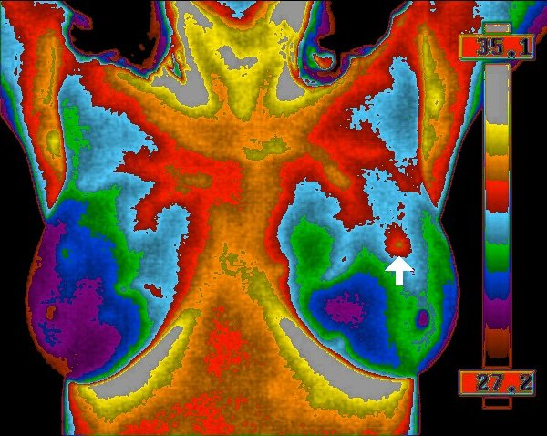 Termografija – sigurna alternativa zamamografiju