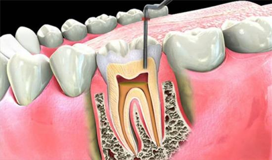 korijenski kanal zuba os uma