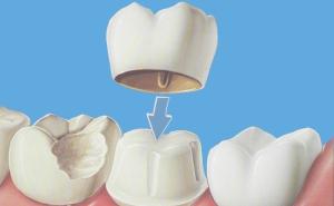 krunica-zuba-os-uma