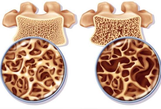osteoporoza kosti os uma