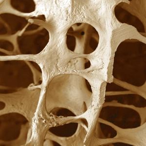 Osteoporoza os uma 1