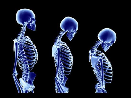 osteoporoza os uma