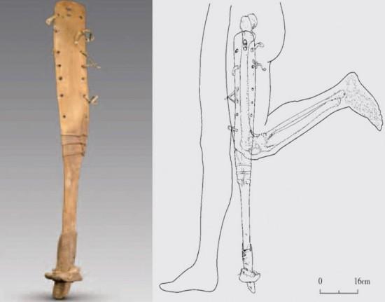 proteza za nogu os uma