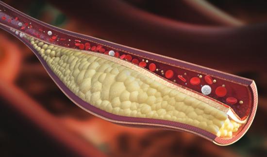 Kolesterol osuma žile