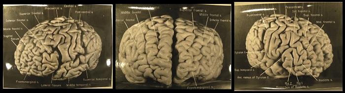 einstein-mozak