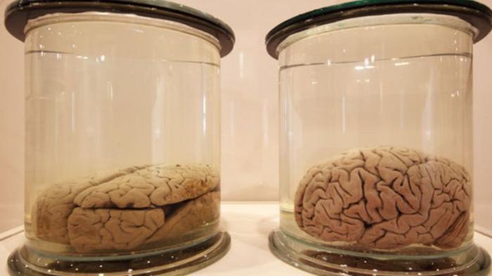 Očuvani mozgovi – nude li željeneodgovore?