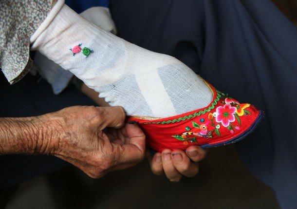 Vezanje stopala – tisućljetna kineskatradicija